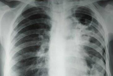 Россия вошла в мировую тройку стран по количеству случаев туберкулеза