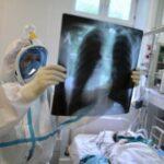 Рассекречен доклад о коронавирусе с закрытого форума реаниматологов
